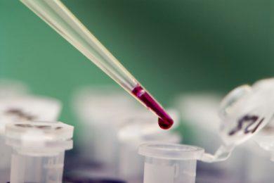 Labordiagnostik - Blutbild, Hormonbestimmung, Allergietest und Ernährungsprogramme
